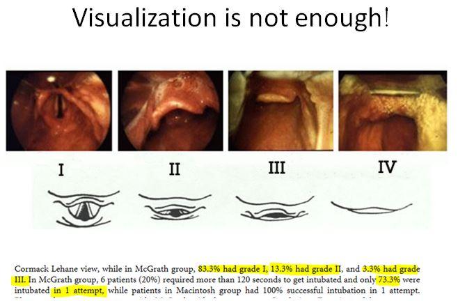 Visualization.JPG